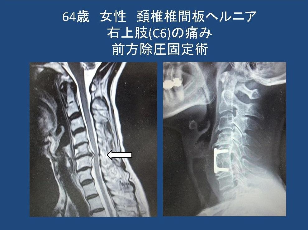 ヘルニア 頚椎